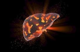 Cirrhose du foie : la promesse d'un nouveau traitement