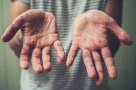Rougeole : trois cas déclarés à la prison de Vivonne