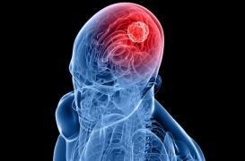 Immunothérapie : avancée dans le traitement des tumeurs cérébrales