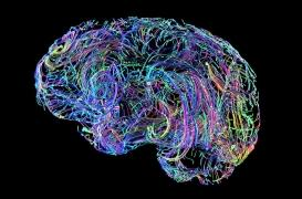 Alzheimer : le défaut de nettoyage des cellules cérébrales est au cœur du problème