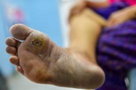 Diabète et problèmes de pied : un patch intelligent qui suit la cicatrisation des plaies à distance