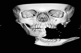 Défigurée lors d'un accident de cheval, une adolescente se refait faire le visage