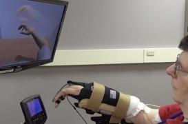 Une neuroprothèse permet à un tétraplégique de bouger son bras
