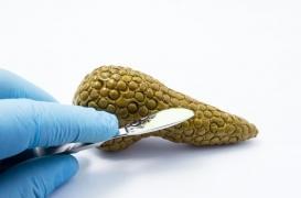 Diabète : des avancées dans la greffe de cellules pancréatiques