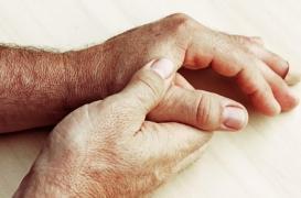 Polyarthrite rhumatoïde : les corticoïdes associés à une augmentation du risque d'infections