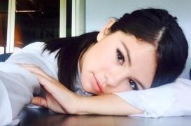 Lupus : quelle est cette maladie peu connue qui touche Selena Gomez et Lady Gaga ?