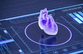 Troubles du rythme cardiaque réfractaires : 99% d'efficacité de la radiothérapie stéréotaxique