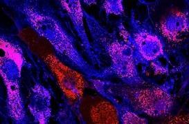 Une modeste anomalie du sang peut conduire insidieusement à un cancer 30 ans après