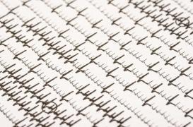 La fibrillation auriculaire sans symptôme relève le défi de sa prise en charge