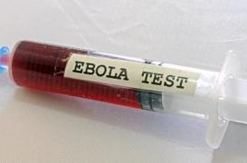 Ebola : la Russie teste un nouveau vaccin en Guinée