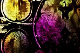 En Inde, un homme se fait retirer une énorme tumeur cérébrale de 2 kilos