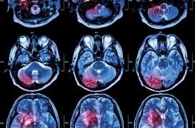 En Inde, un homme se fait enlever une impressionnante tumeur cérébrale de 2 kilos