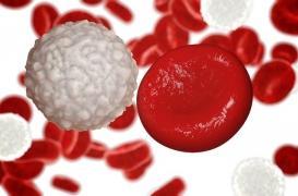 TKI : la moitié des leucémies myéloïdes chroniques en rémission prolongée sans aucun traitement