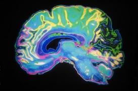 Alzheimer : la perte en neurones est paradoxalement très limitée