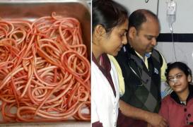 Inde : des médecins retirent 150 vers de l'intestin d'une femme