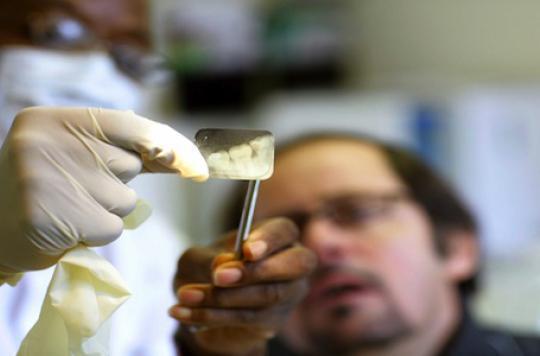 Soins dentaires: le low cost peut coûter cher