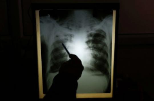 Tuberculose : la situation s'améliore, sauf en Seine-Saint-Denis