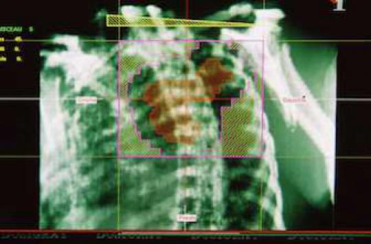 Cancer du poumon : 30 % de décès trois mois après le diagnostic