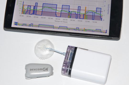 Diabète : des pompes à insuline innovantes
