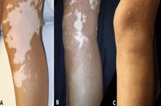 Vitiligo : l'autogreffe de peau est efficace à long terme
