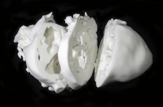 Malformations cardiaques : l'impression 3D au secours de la chirurgie