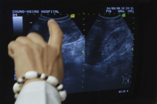 Calculs rénaux : l'opération peut déboucher sur de coûteuses complications