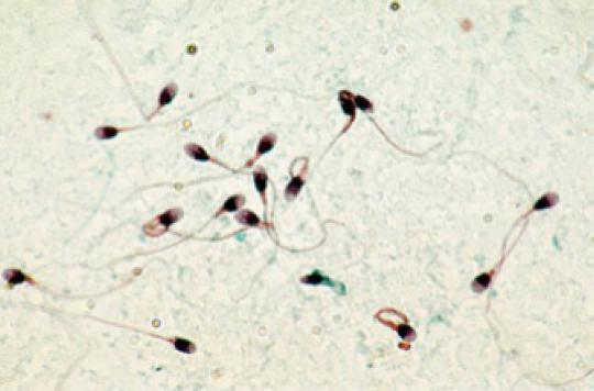 Infertilité masculine : des produits chimiques du quotidien mis en accusation
