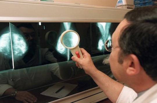 Le dépistage organisé du cancer du sein réduit la mortalité de 21%