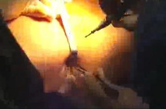 Une tumeur du rein extraite par le nombril