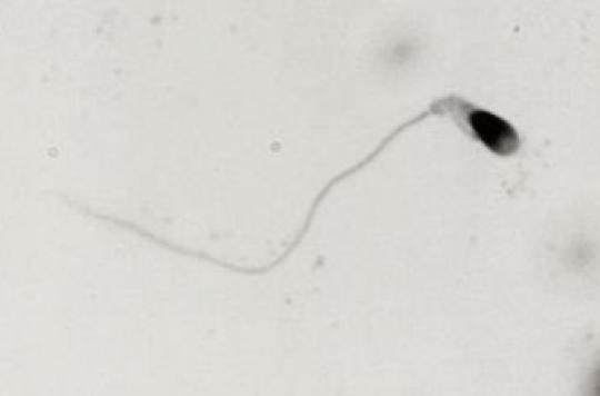 Fertilité : l'aluminium réduit la qualité du sperme