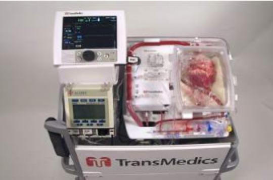 Un cœur transplanté après l'arrêt cardiaque du donneur