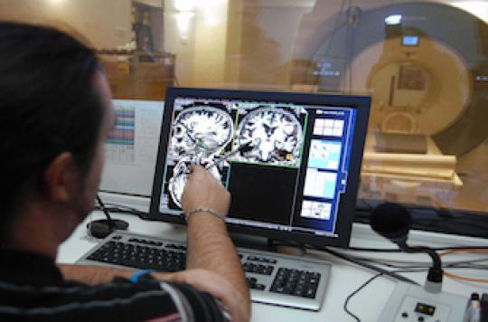 Alzheimer : son point de départ dans le cerveau localisé