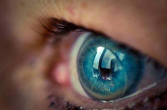 Des chirurgiens retrouvent 27 lentilles dans l'oeil d'une patiente