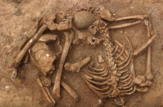 Le cancer existait déjà il y a 3 200 ans