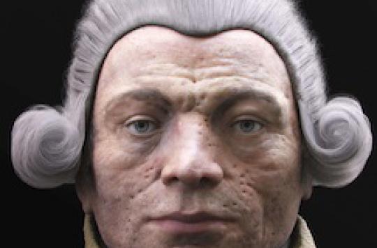 Robespierre : l'incorruptible souffrait de sarcoïdose et de la variole