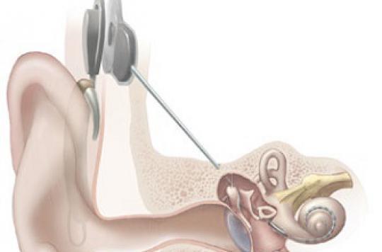 Perte d'audition : vers des implants cochléaires en Wi-Fi