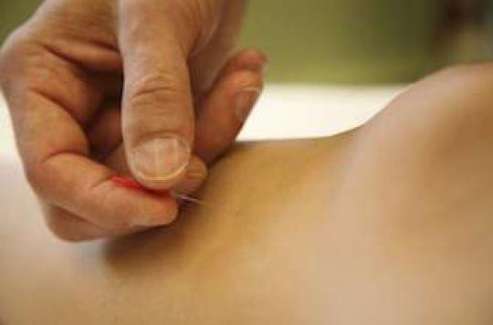 Acupuncture :plus efficace si on y croit