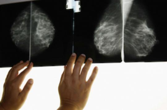 Mammographie : un résultat faux-positif ne détourne pas du dépistage