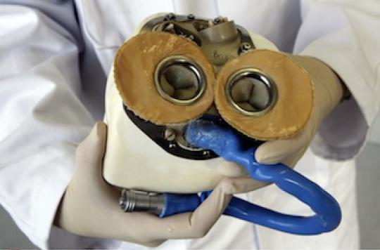 Coeur artificiel : un deuxième patient implanté dans le plus grand secret