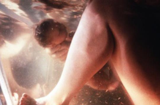 L'accouchement dans l'eau ne serait pas sans risque