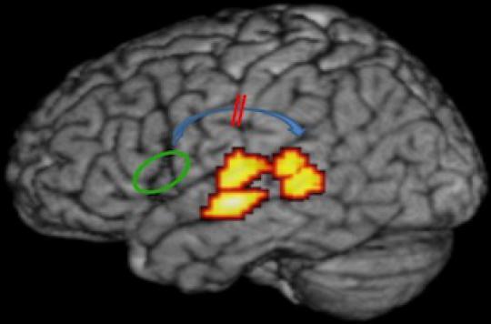 La dyslexie serait liée à un défaut de connexion dans le cerveau