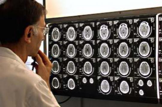 Dépression : liée à l'inflammation cérébrale