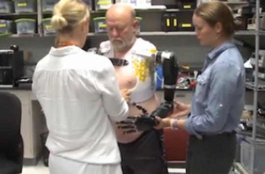 Un homme amputé contrôle ses bras bioniques par la pensée
