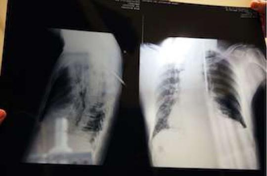 Cancer du poumon : un traitement majeur par immunothérapie