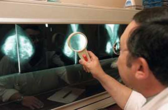 Un traitement contre l'épilepsie efficace dans le cancer du sein