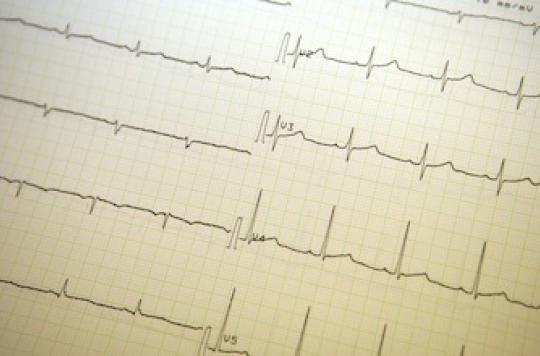 Une femme revit après 42 minutes de mort clinique