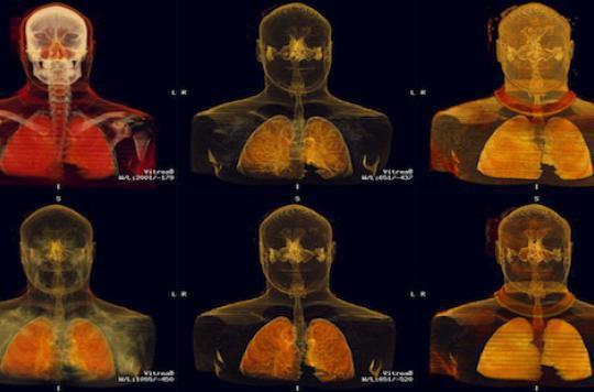 Cancer bronchique: tripler le nombre de guérisons