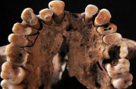 Caries et mauvaise haleine remontent à la préhistoire