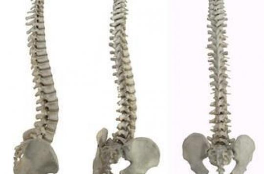 Ostéoporose, des médicaments plus ou moins efficaces