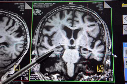 Alzheimer : des dépôts anormaux de graisse dans le cerveau